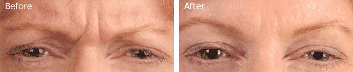 BOTOX® Before and After Results - Patient 2