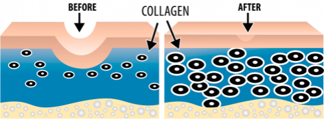 Diagram of Collagen before and after laser treatment