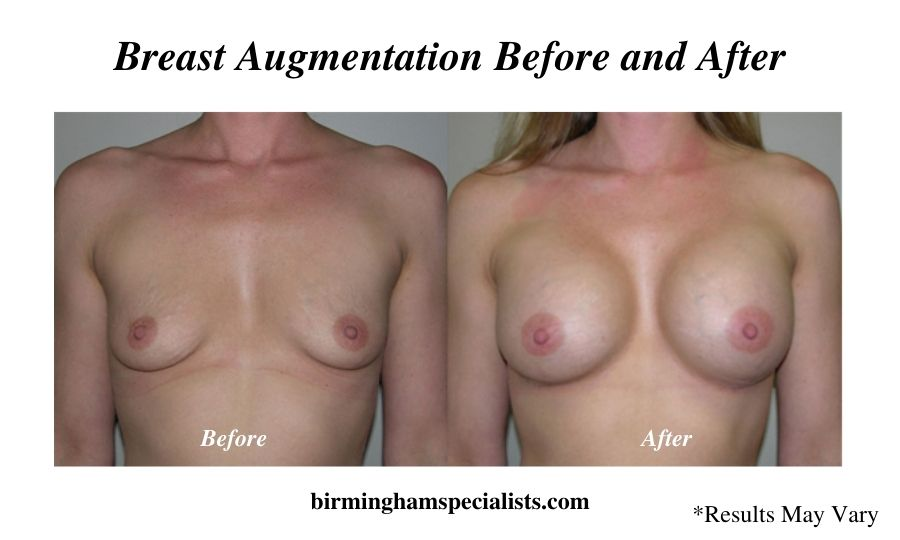 A woman before and after her breast augmentation surgery with implants in Birmingham, Alabama.
