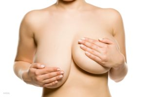 Nude woman covering her very asymmetrical breasts with her hands.