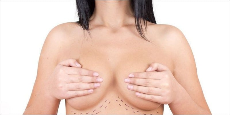 Woman with pen marks on her breast