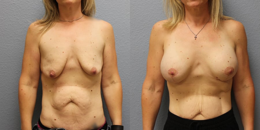 Breast Lift actual patient results
