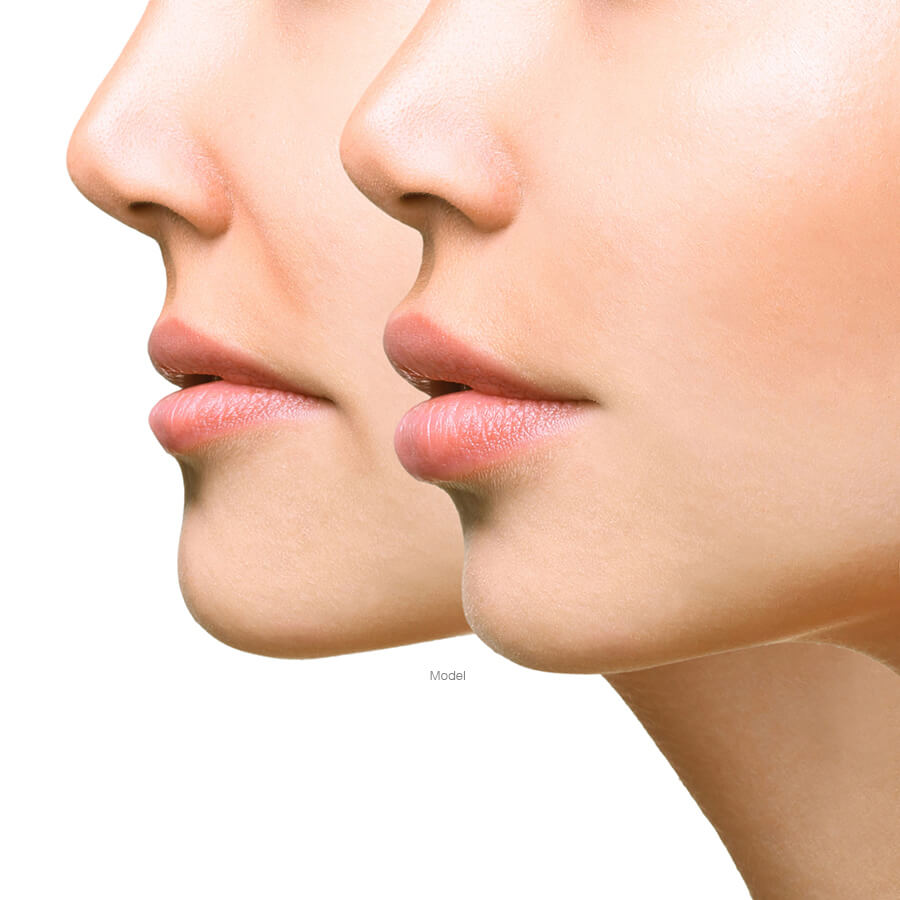Profile of two women's lower face