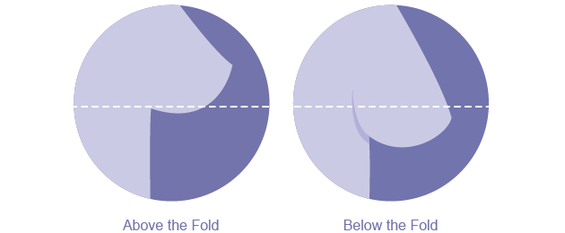 Breast Lift Diagram