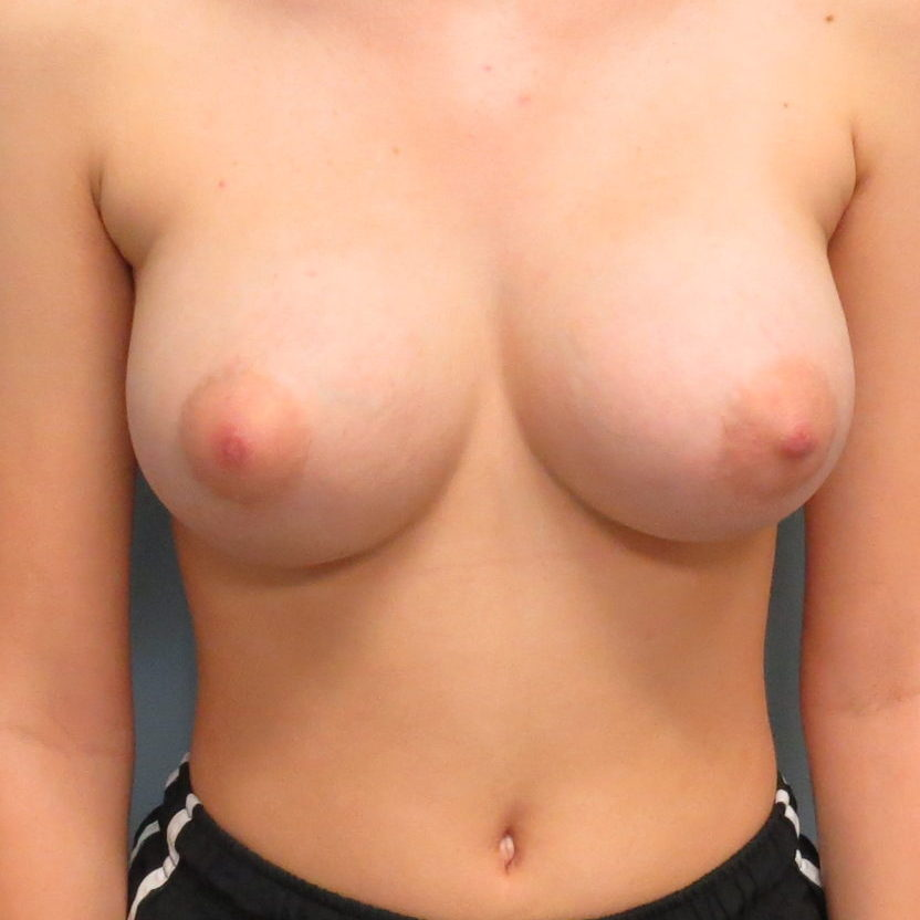 Breast Augmentation Patient After 4