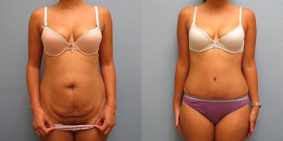 Tummy Tuck before an after patient