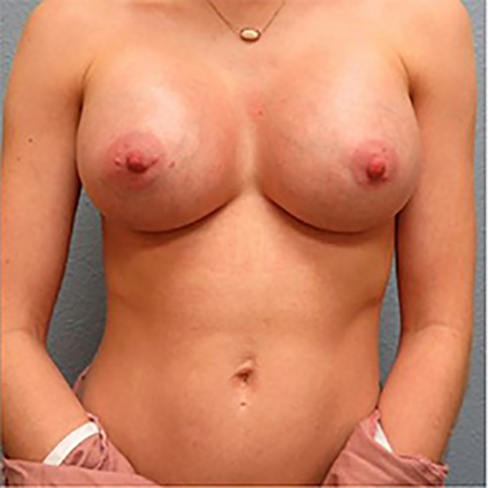 Breast Augmentation Patient After 6