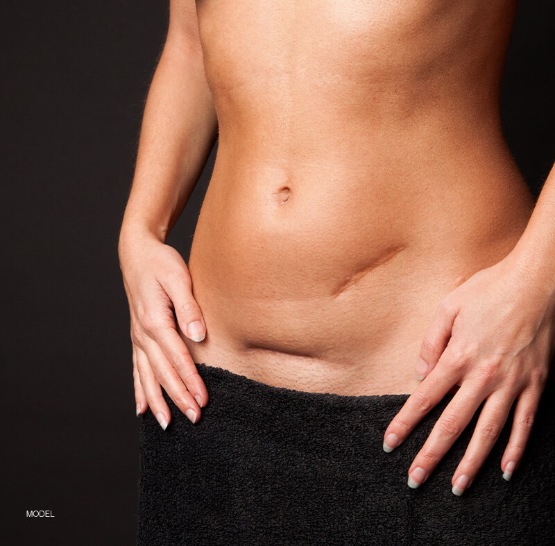 Woman with scars on belly