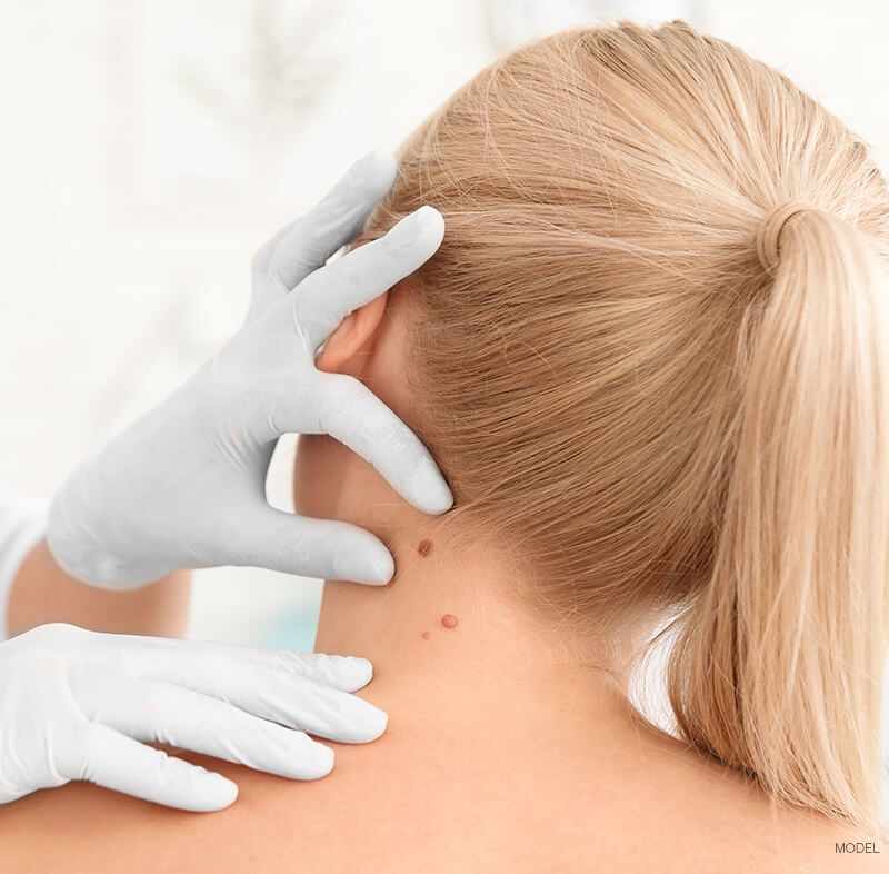 Doctor inspection woman's moles