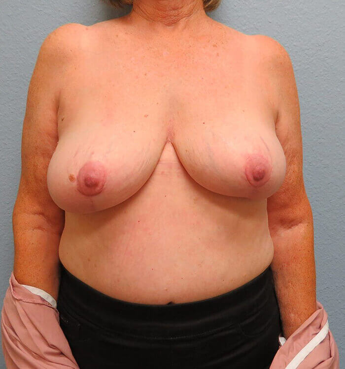 Breast Revision Patient After 6