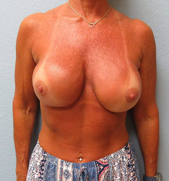 Breast Revision Patient After 2
