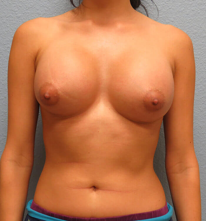 Breast Revision Patient Before 3