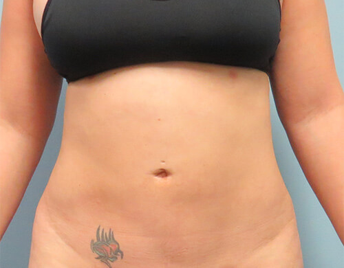 Liposuction in Corpus Christi, TX Patient After 2
