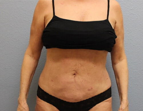 Liposuction in Corpus Christi, TX Patient After 4