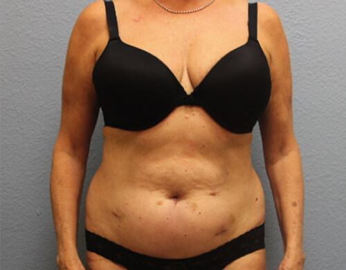 Liposuction in Corpus Christi, TX Patient Before 3