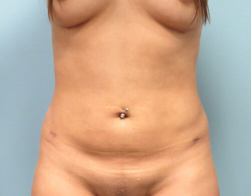 Liposuction in Corpus Christi, TX Patient After 6