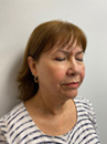 Ultherapy® Patient After 4