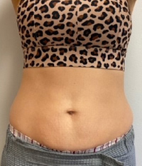 CoolSculpting® in Corpus Christi, TX Patient After 2