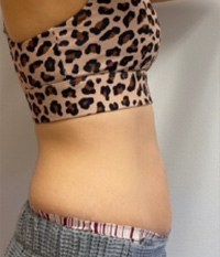 CoolSculpting® in Corpus Christi, TX Patient After 4