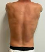 CoolSculpting® in Corpus Christi, TX Patient After 6