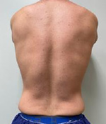 CoolSculpting® in Corpus Christi, TX Patient Before 5