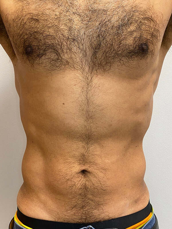 CoolTone® by CoolSculpting® in Corpus Christi, TX Patient After 2