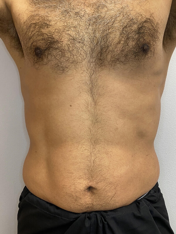 CoolTone® by CoolSculpting® in Corpus Christi, TX Patient Before 1