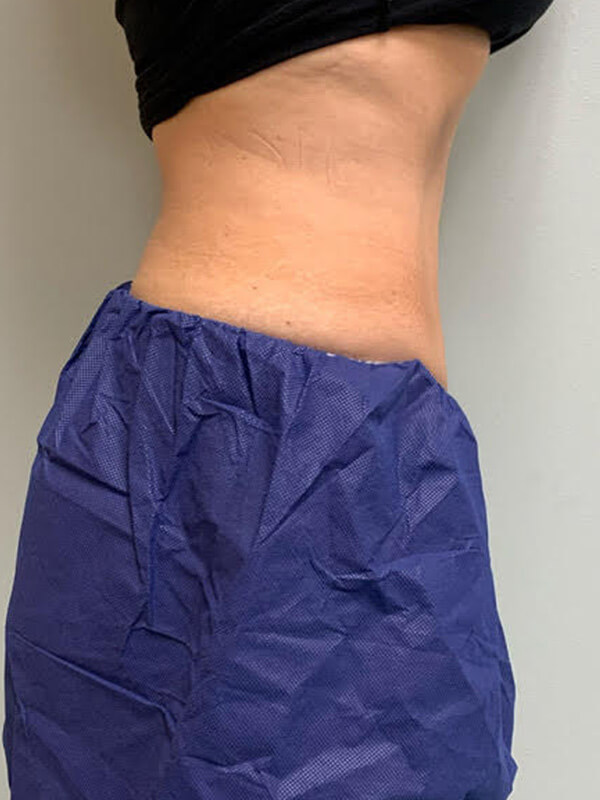 CoolTone® by CoolSculpting® in Corpus Christi, TX Patient After 4